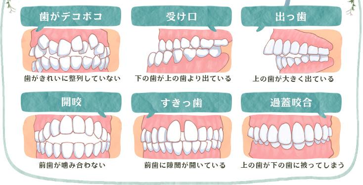 歯がデコボコ 受け口 出っ歯 開咬 すきっ歯 過蓋咬合