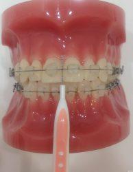 歯間ブラシ 正面