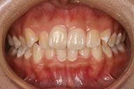 矯正前 正面 前歯でこぼこ